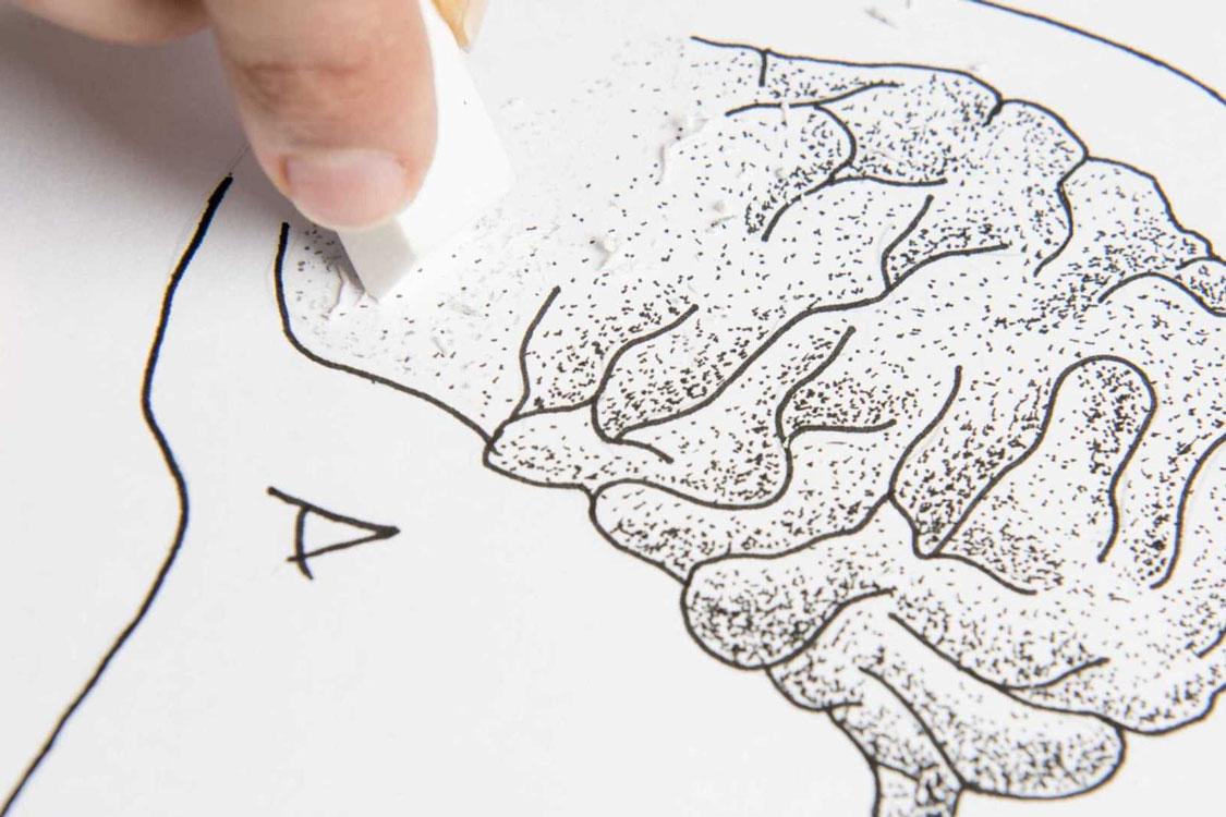 6 alimentos que deve comer para evitar ter Alzheimer